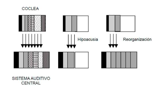 Proceso de desaferenciación coclear por lesión periférica y respuesta a nivel del córtex auditivo